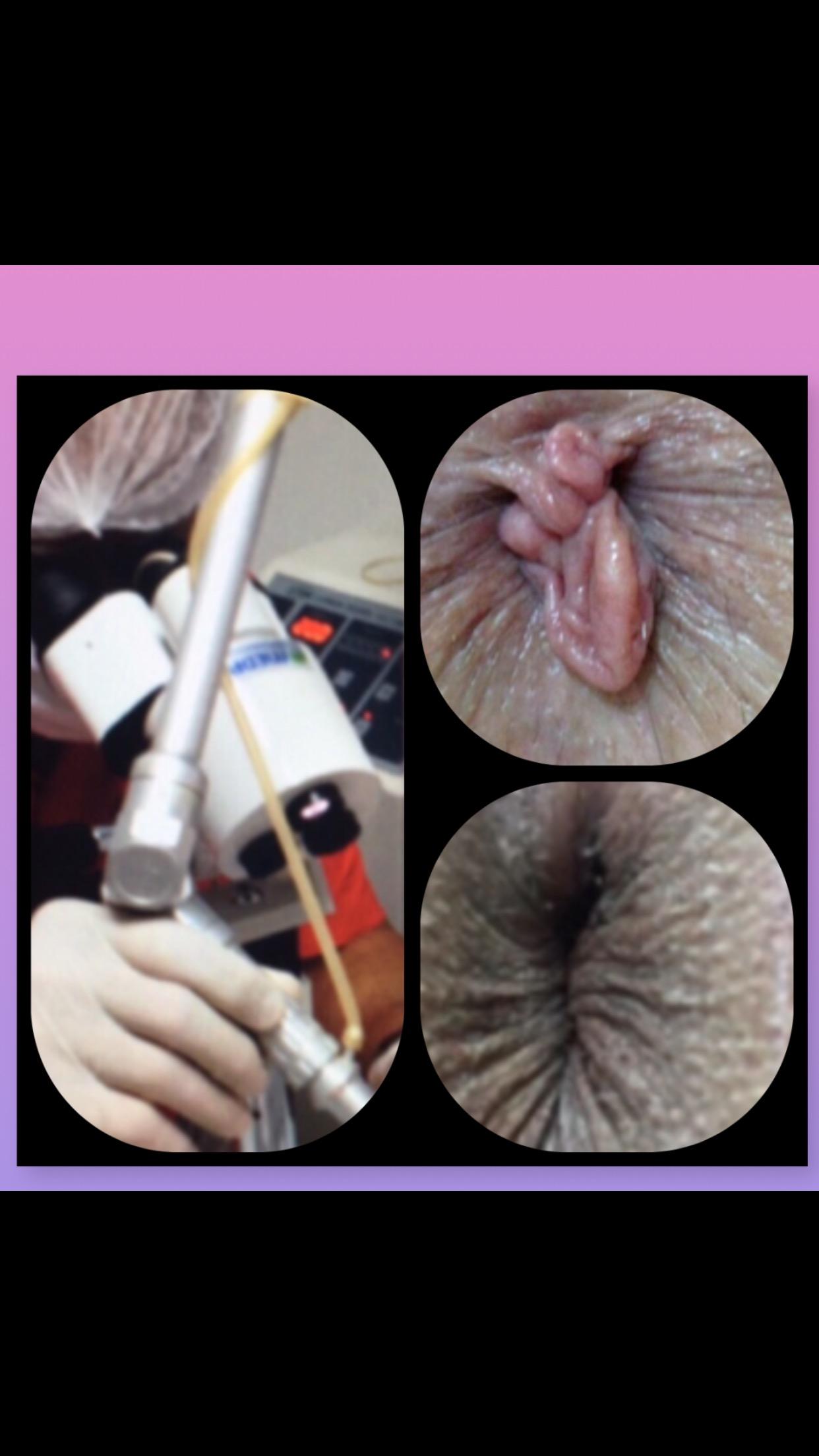 plicoma ou pelinha perianal que causa coceira pelo uso do papel higiênico e constrangimento estético.
