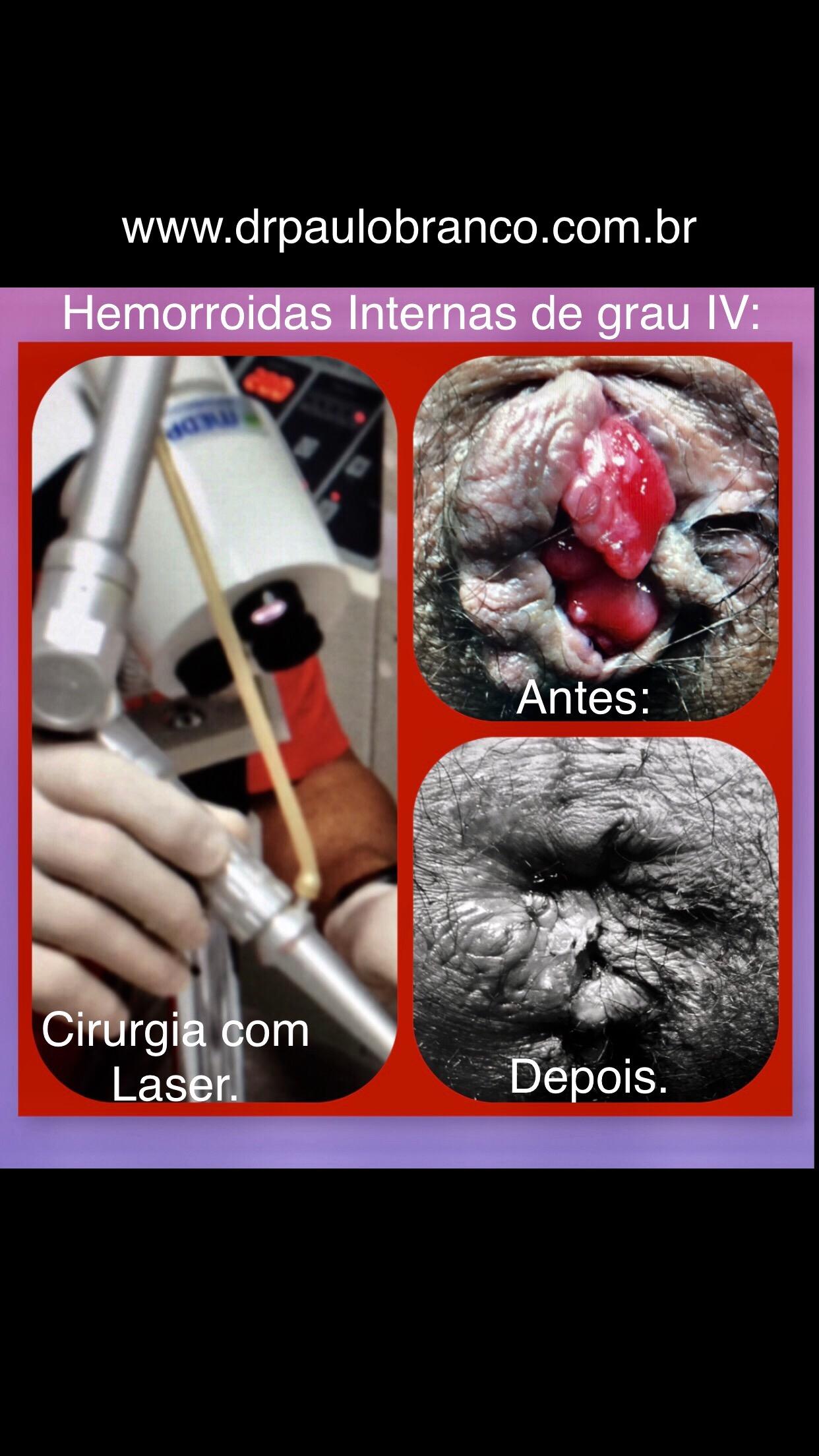 hemorroidas internas de grau IV tratadas com laser sem internação.