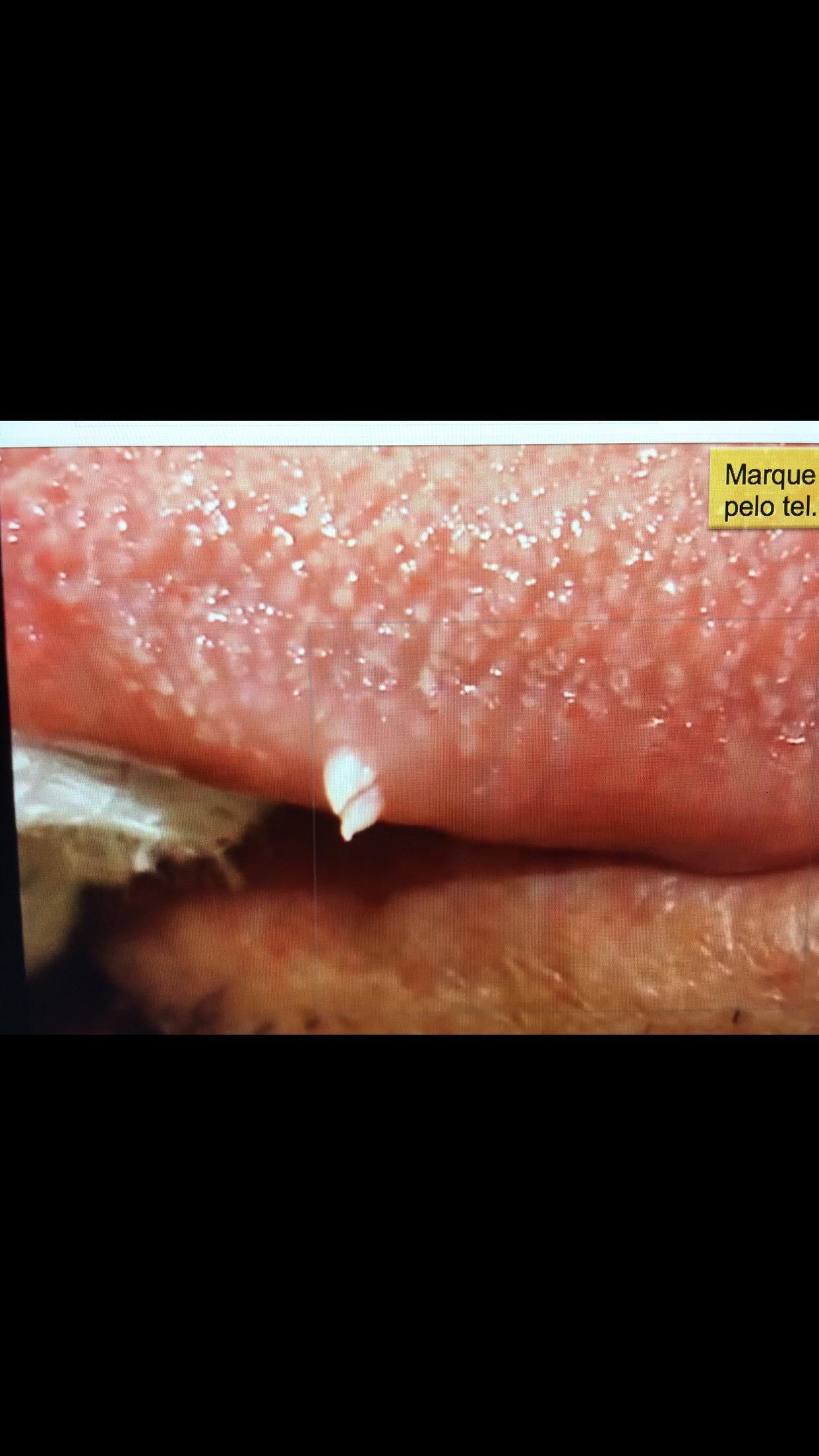 Verruga de hpv no labio.