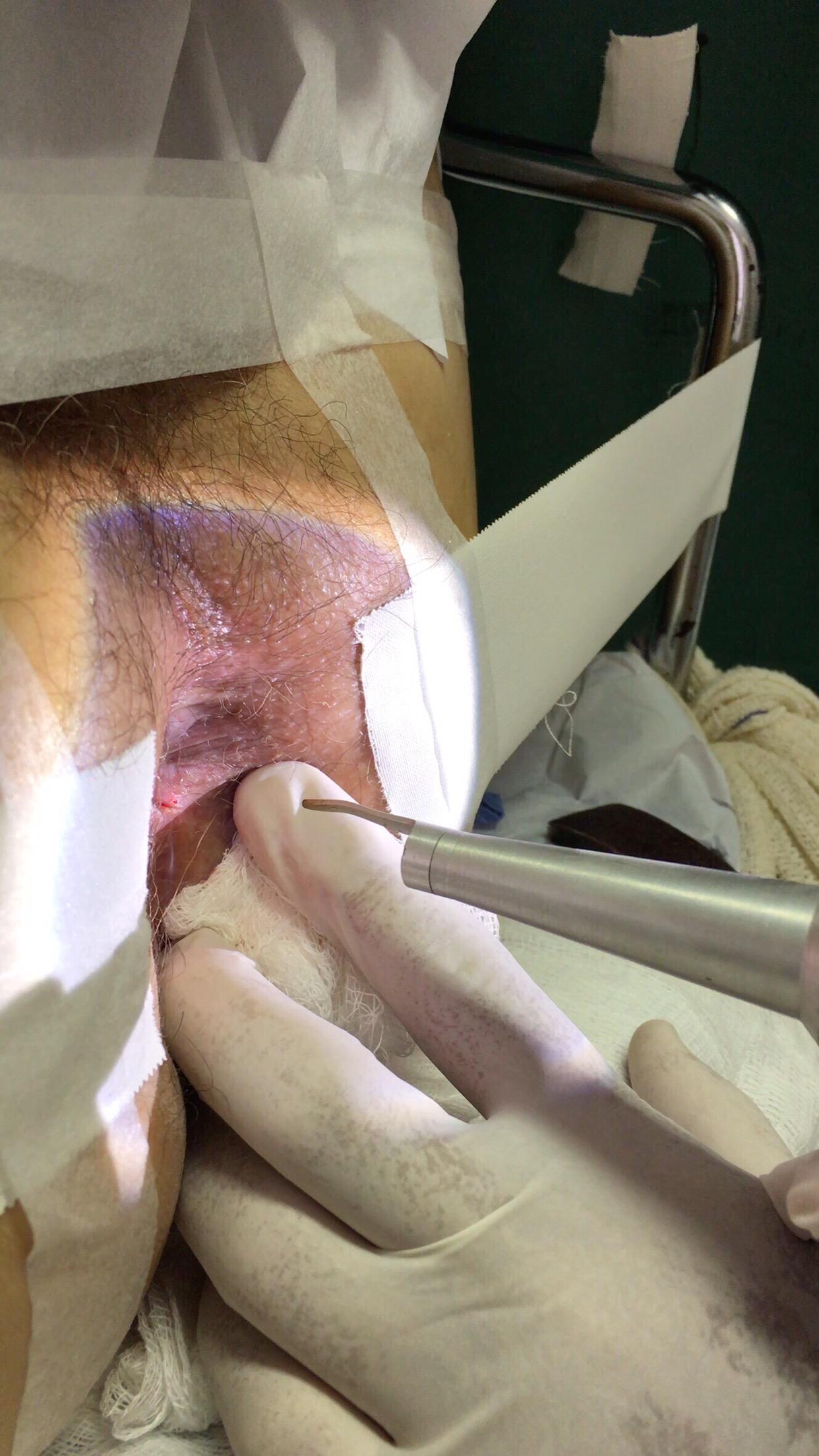 Verrugas de hpv na foto veja o tratamento com o laser.