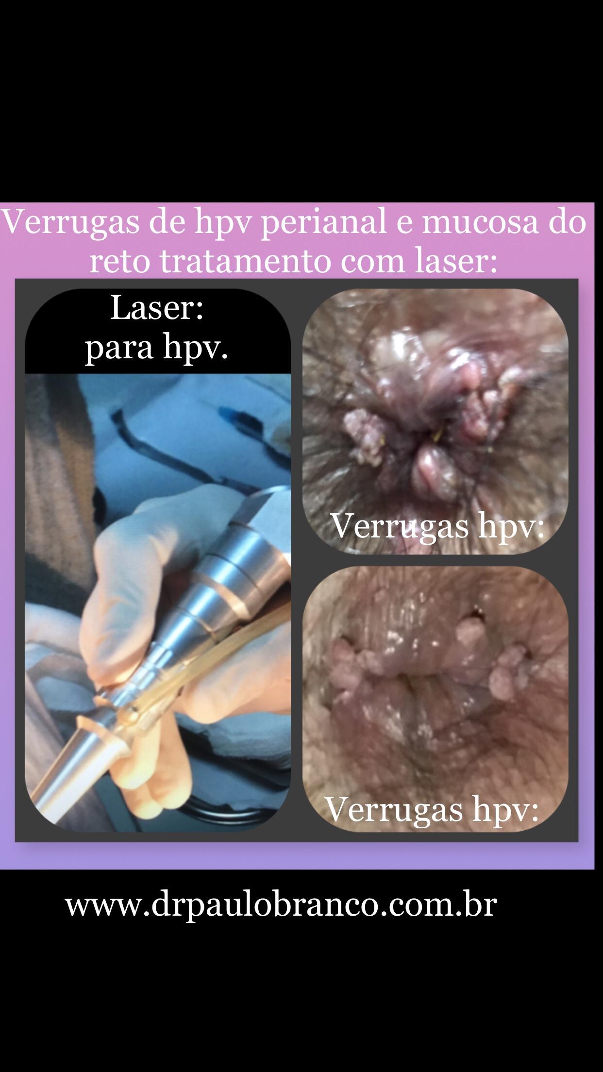 Verrugas de hpv tratadas com laser.