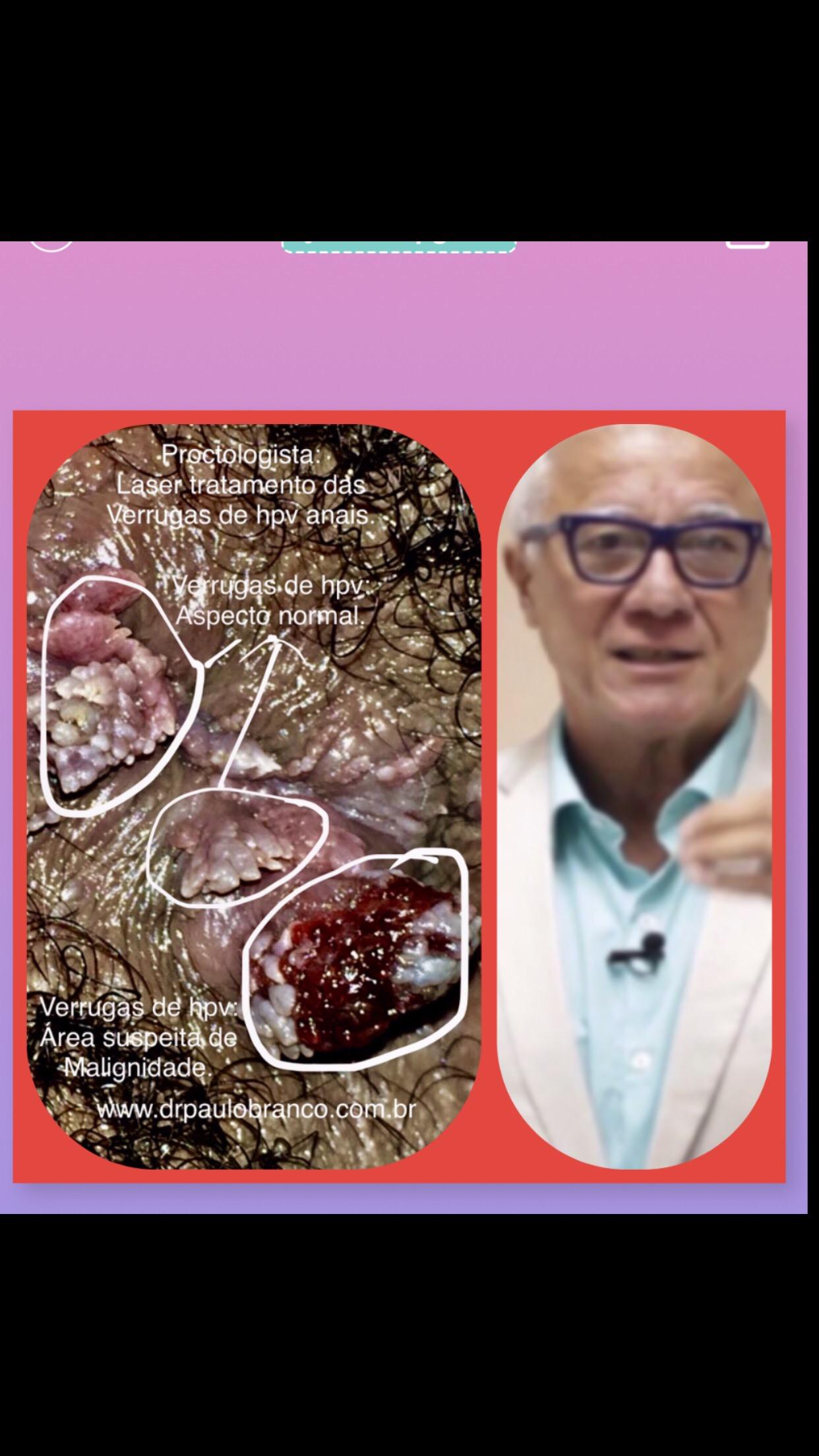 Verrugas de hpv na pele perianal com possível potencial de alterações histológicas.