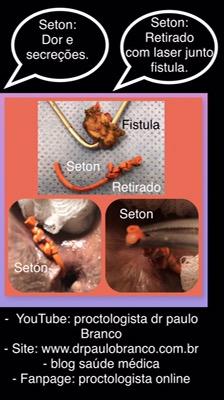 Seton para o tratamento da fistula perianal que não resolveu e ainda causou dor intensa.