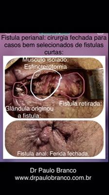 fistula perianal tratada com laser