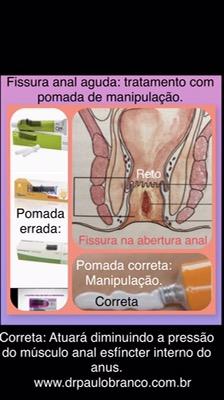 fissura anal aguda tratamento com pomada de manipulação que atuará na causa da fissura anal.