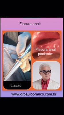 fissura anal crônica tratada com laser