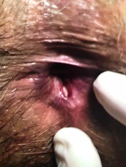 diagnostico da fissura anal.