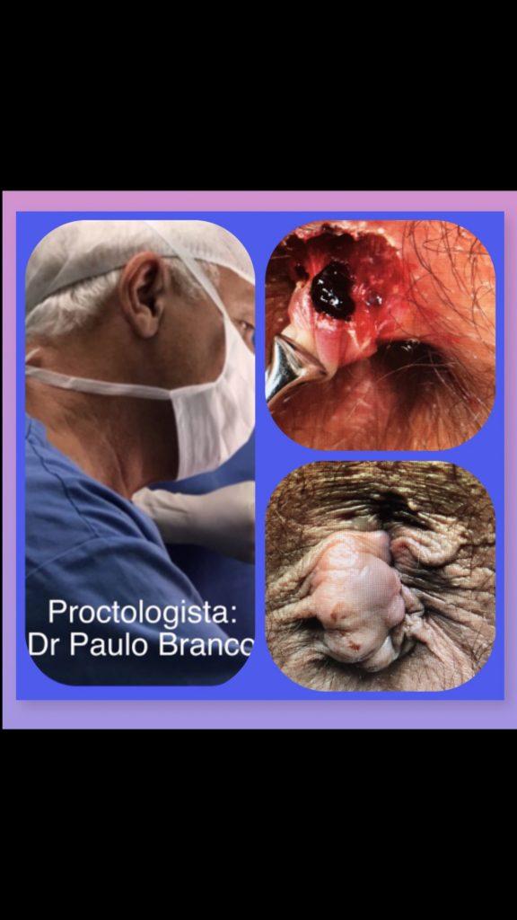 hemorroida trombosada