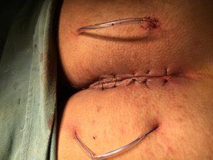 cisto pilonidal veja a cirurgia fechada com laser.