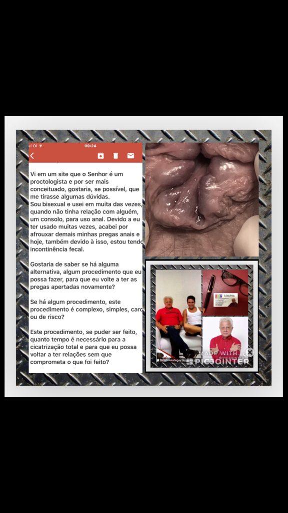 bissexual com hemorroida interna de grau IV.