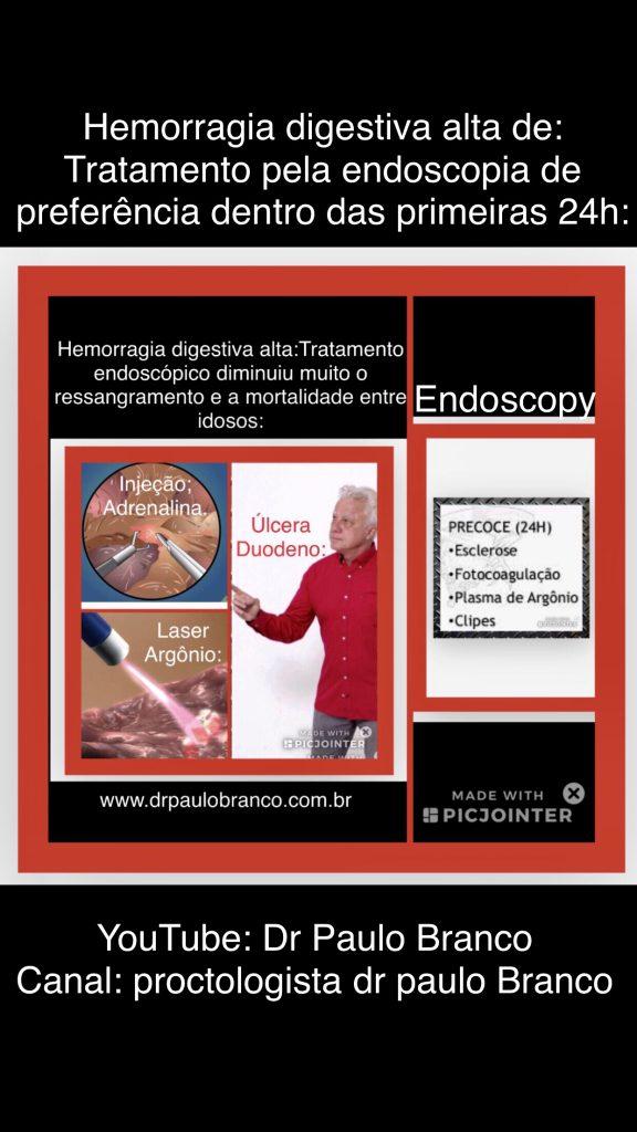 Hemorragia tratamento pela endoscopia.