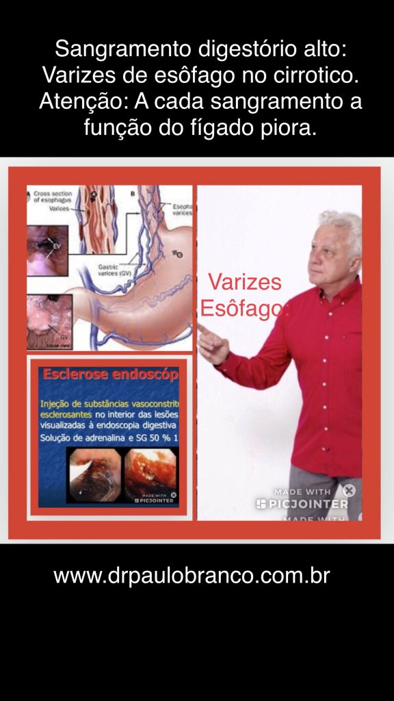 Hemorragia por varizes de esôfago tratada pela esclerose endoscopica.