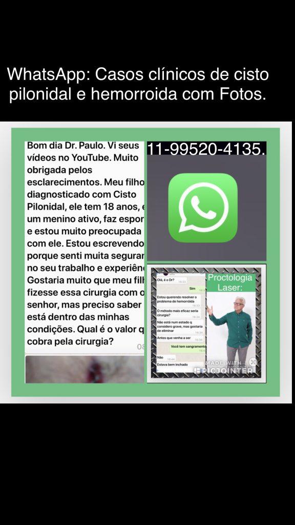 cisto pilonidal e hemorroida foi o caso clinico enviado para o whatsapp do medico proctologista Dr Paulo Branco.