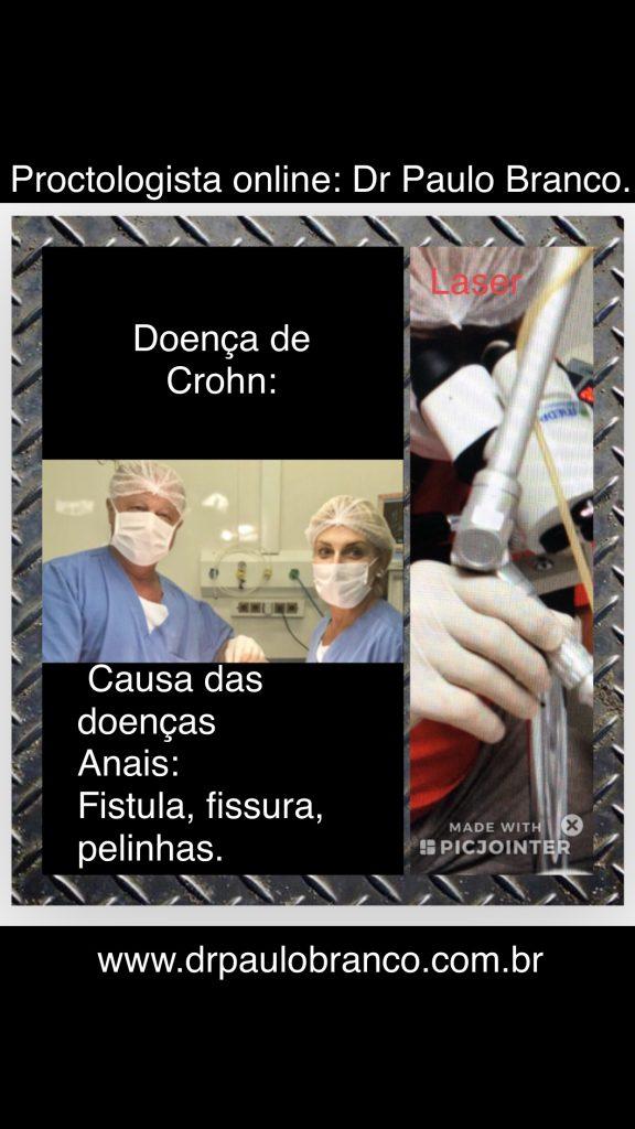 doença de Crohn causa a fistula perianal e fissura anal.