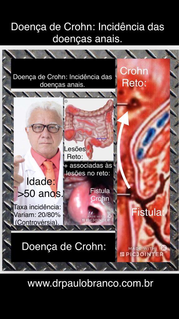 doença de Crohn e a incidência das doenças anais.