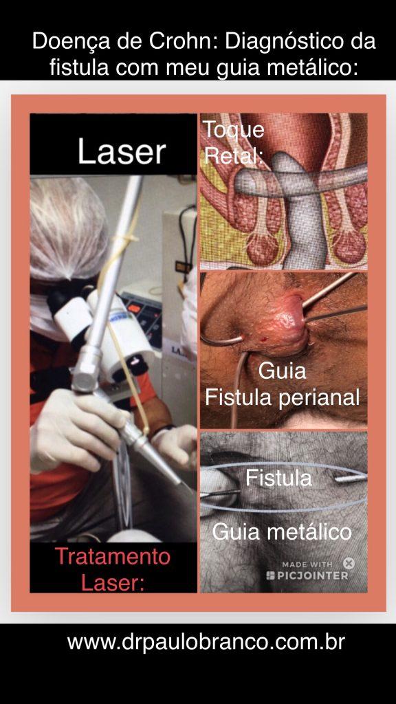 doença de Crohn DIAGNOSTICO da fistula perianal.