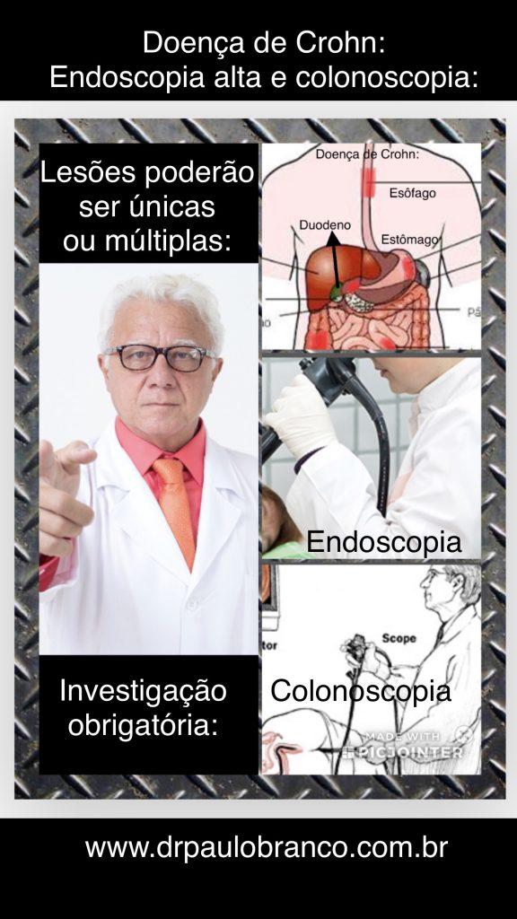 doença de crohn.