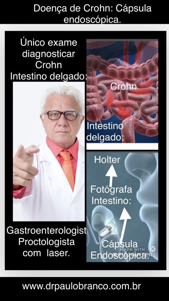 doença de Crohn diagnosticada pela capsula endoscópica.