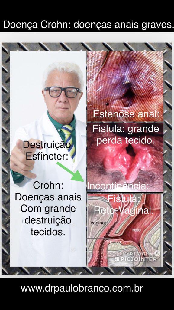 doença de Crohn causa estenose e fistula perianal.
