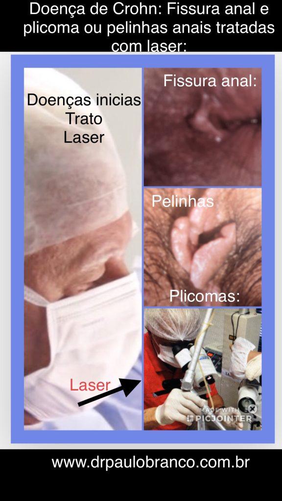 doença de Crohn causa a fissura anal perianal e a pelinha perianal.