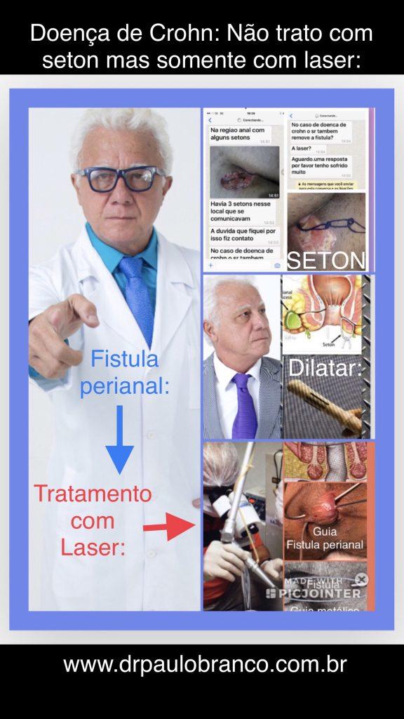 fistula perianal pela doença de Crohn.