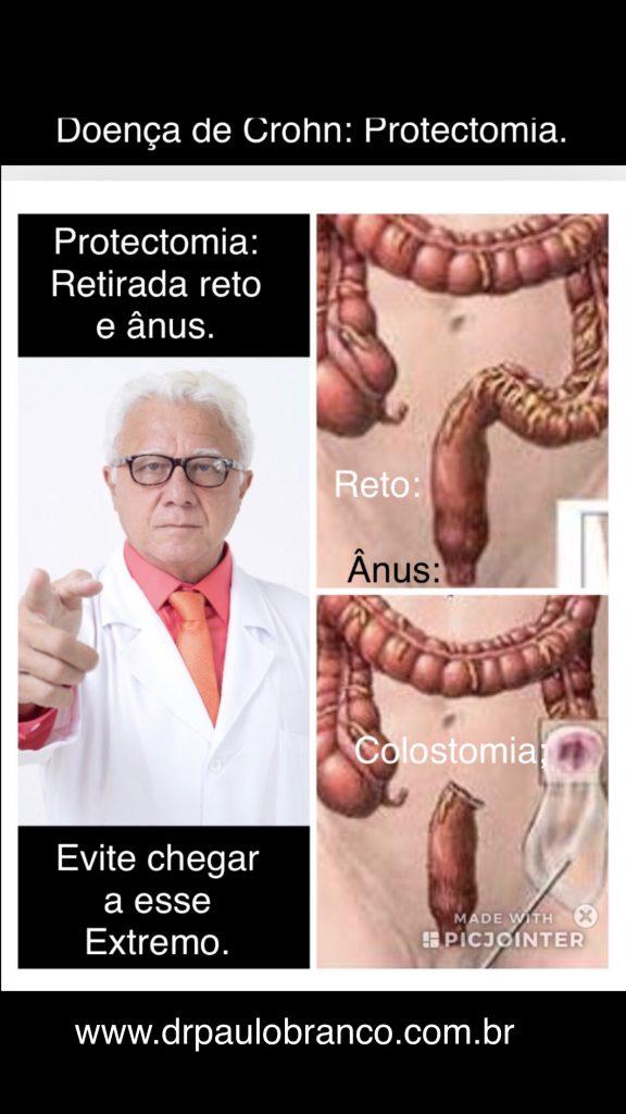 doença de Crohn com infecção grave.