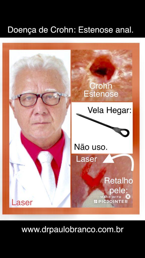 doença de Crohn com estenose tratada pelo retalho de pele com laser: