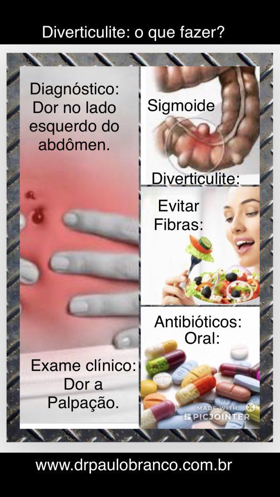 Diverticulite saiba o tratamento na fase aguda.