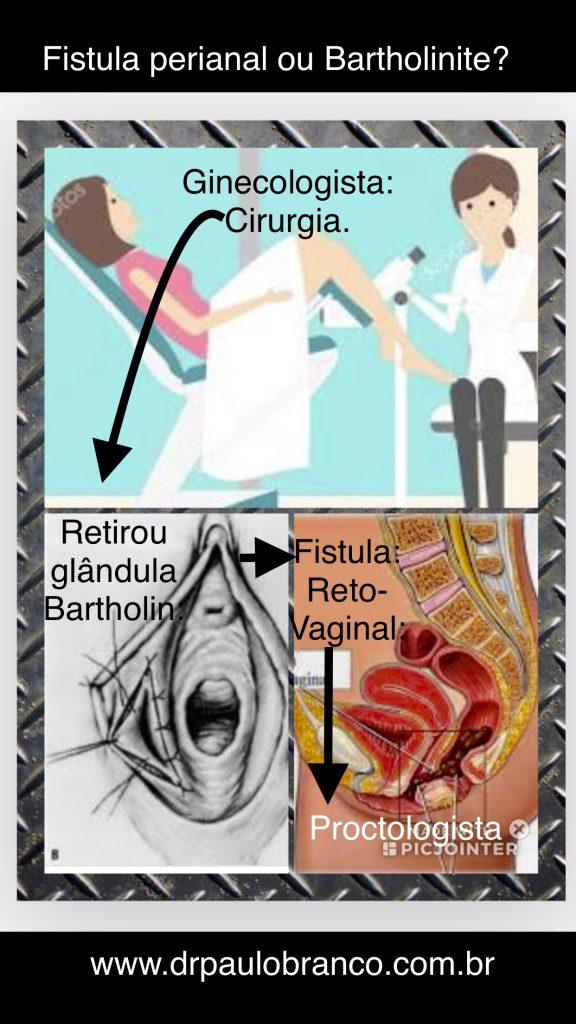 bartholinite tratada pela retirada cirurgica da glandula