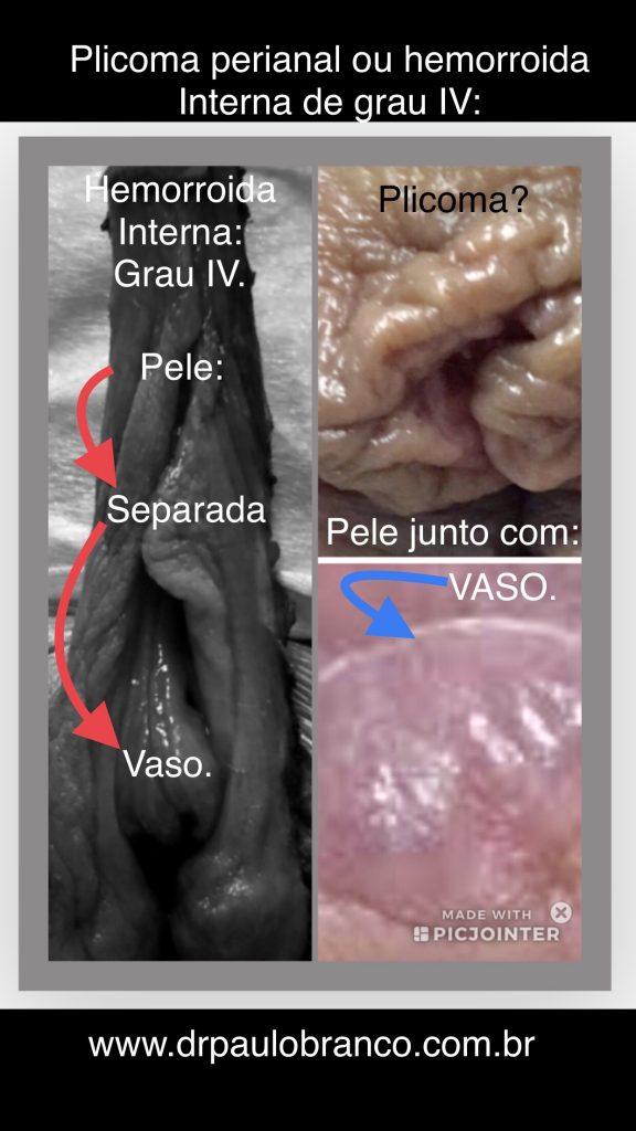 hemorroida interna de grau IV ou plicoma?