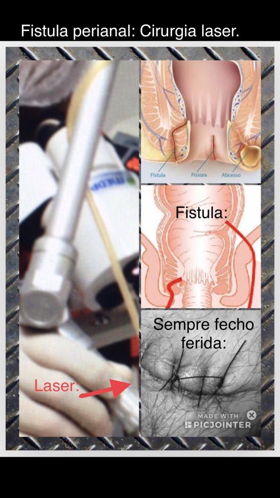 fistula perianal cirurgia fechada com laser.