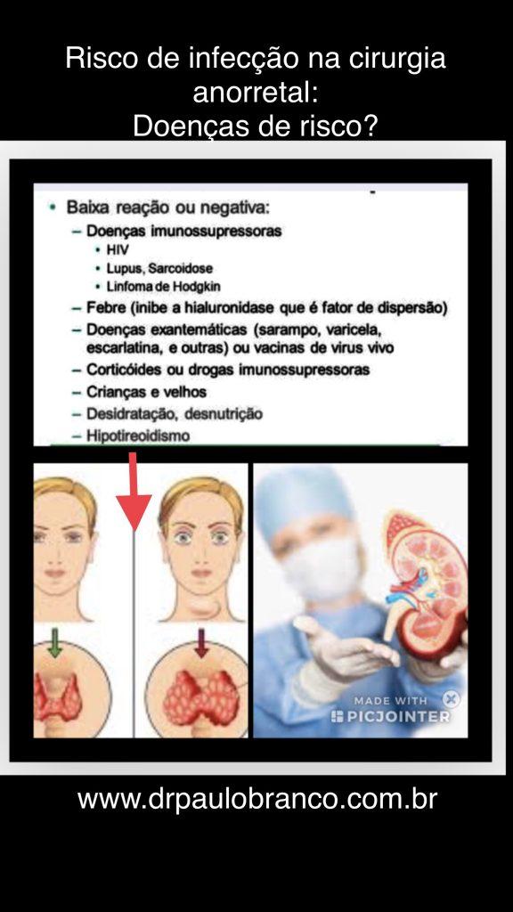 transplantados tem maior risco de infecção na cirurgia da hemorroida