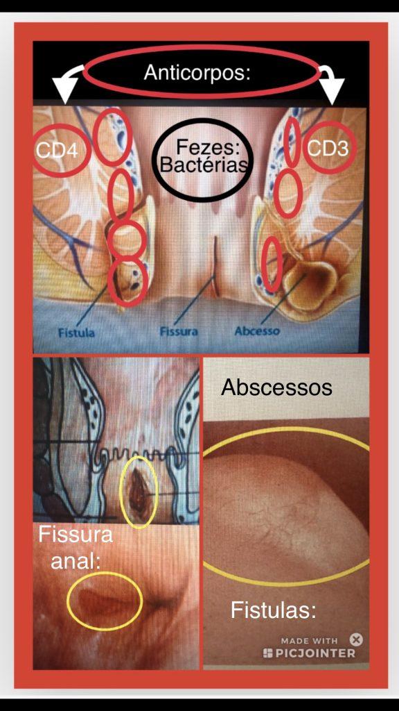 risco de infecção na cirurgia anorretal