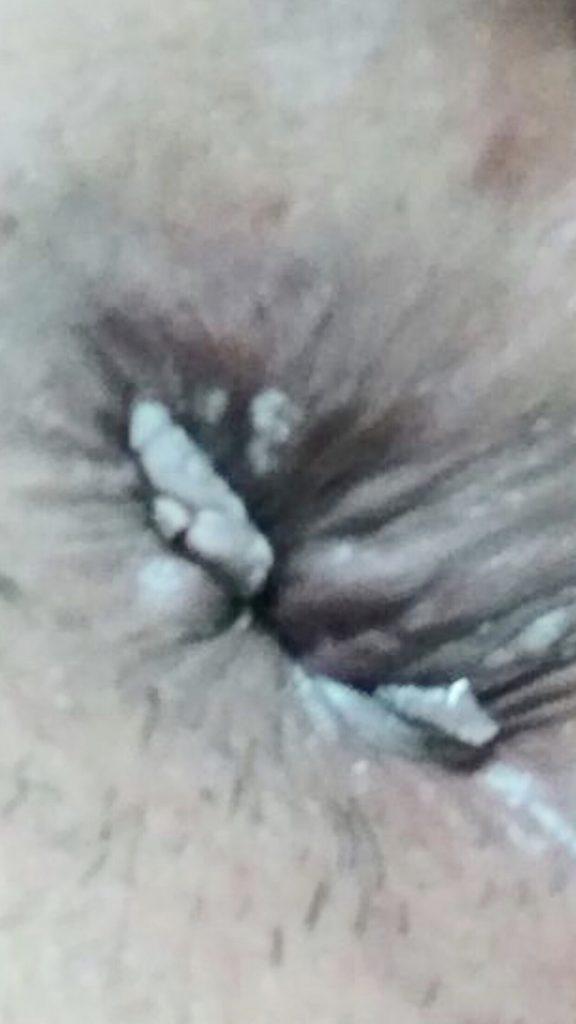 verrugas de hpv no anus dos gays