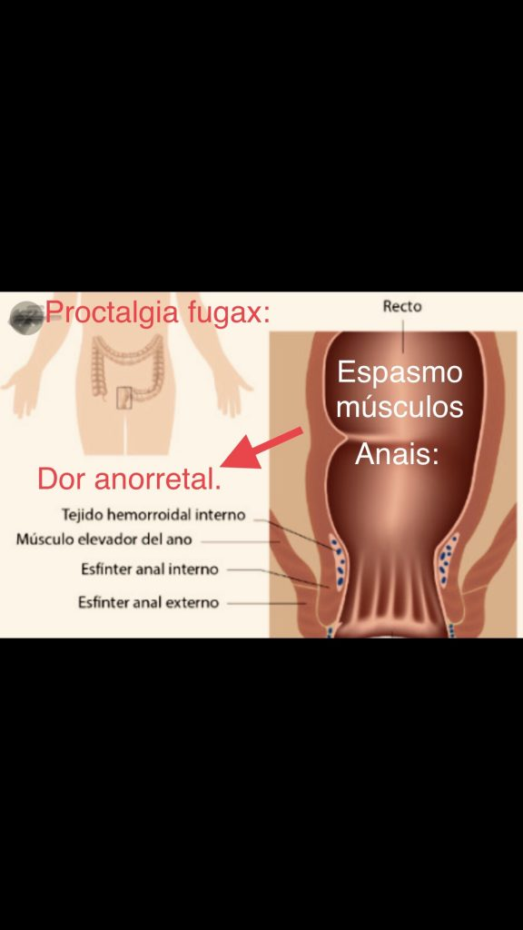 proctalgia fugaz