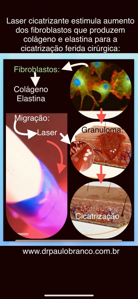 cicatrização após cirurgia para fissura anal com laser.