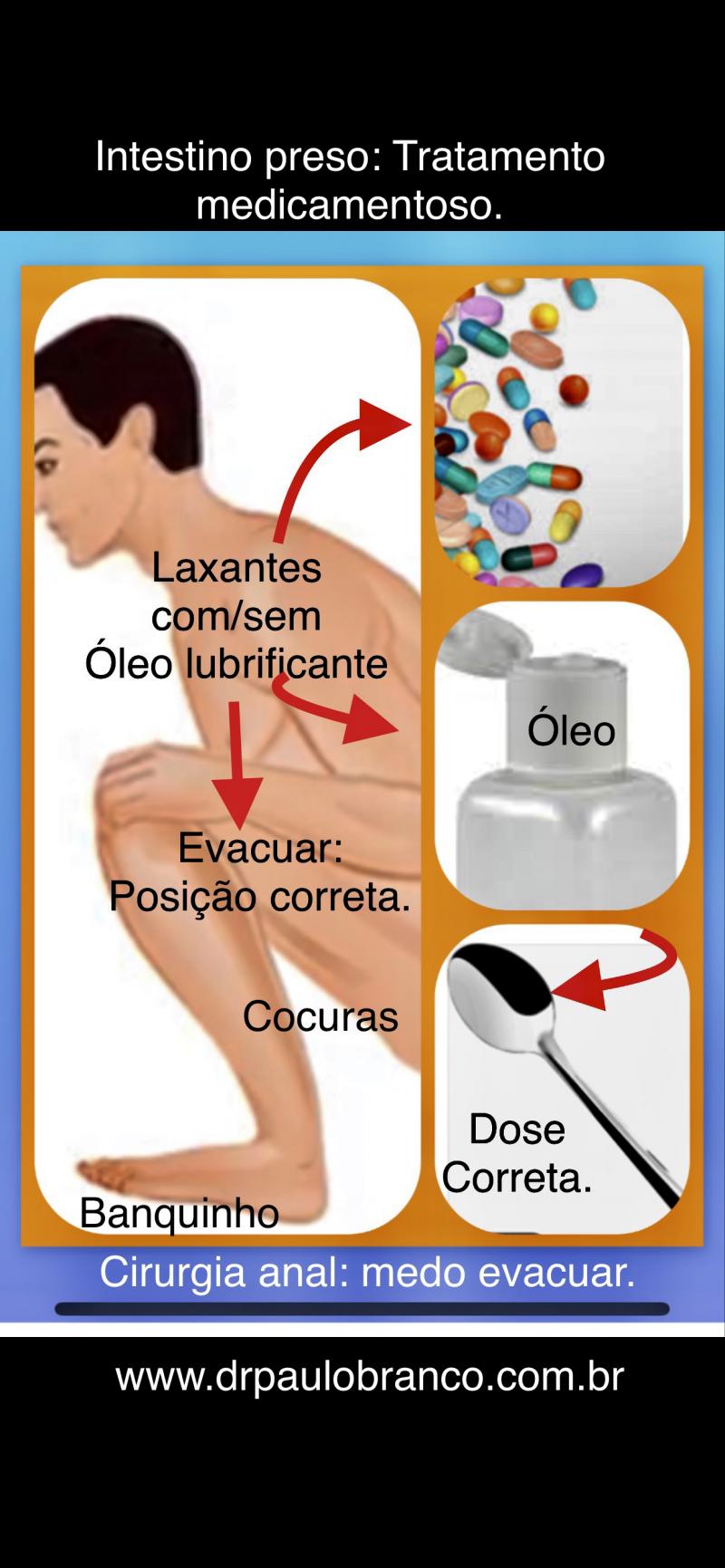 intestino preso tratamento com laxante
