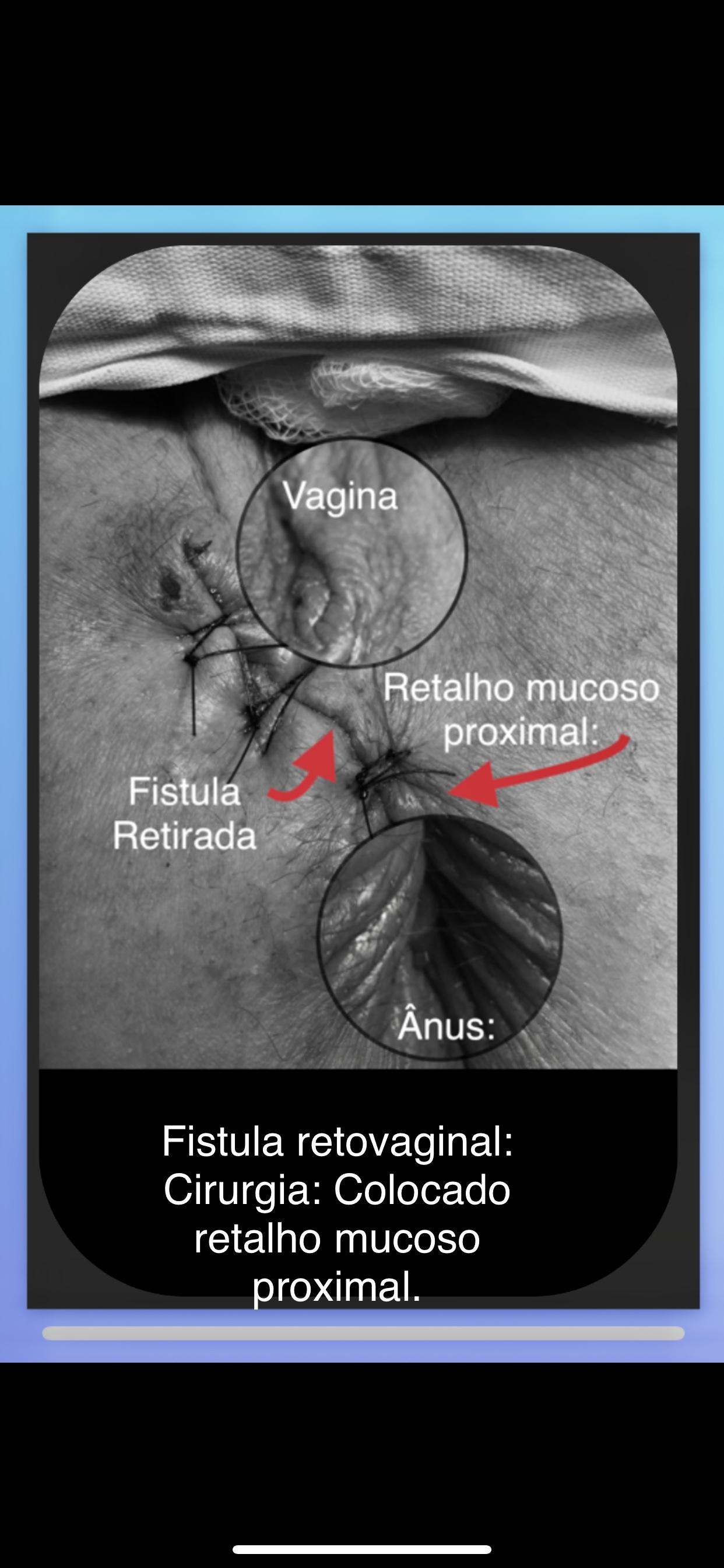 Fistula perianal retovaginal tratamento com retalho mucoso