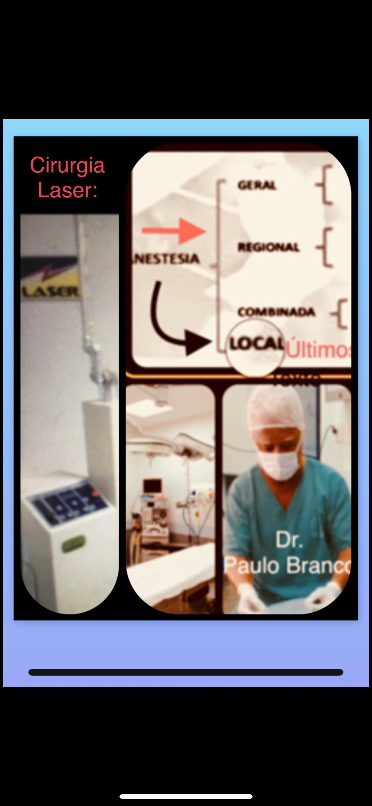 Fistula perianal retovaginal cirurgia com laser sob anestesia local e sem internação.