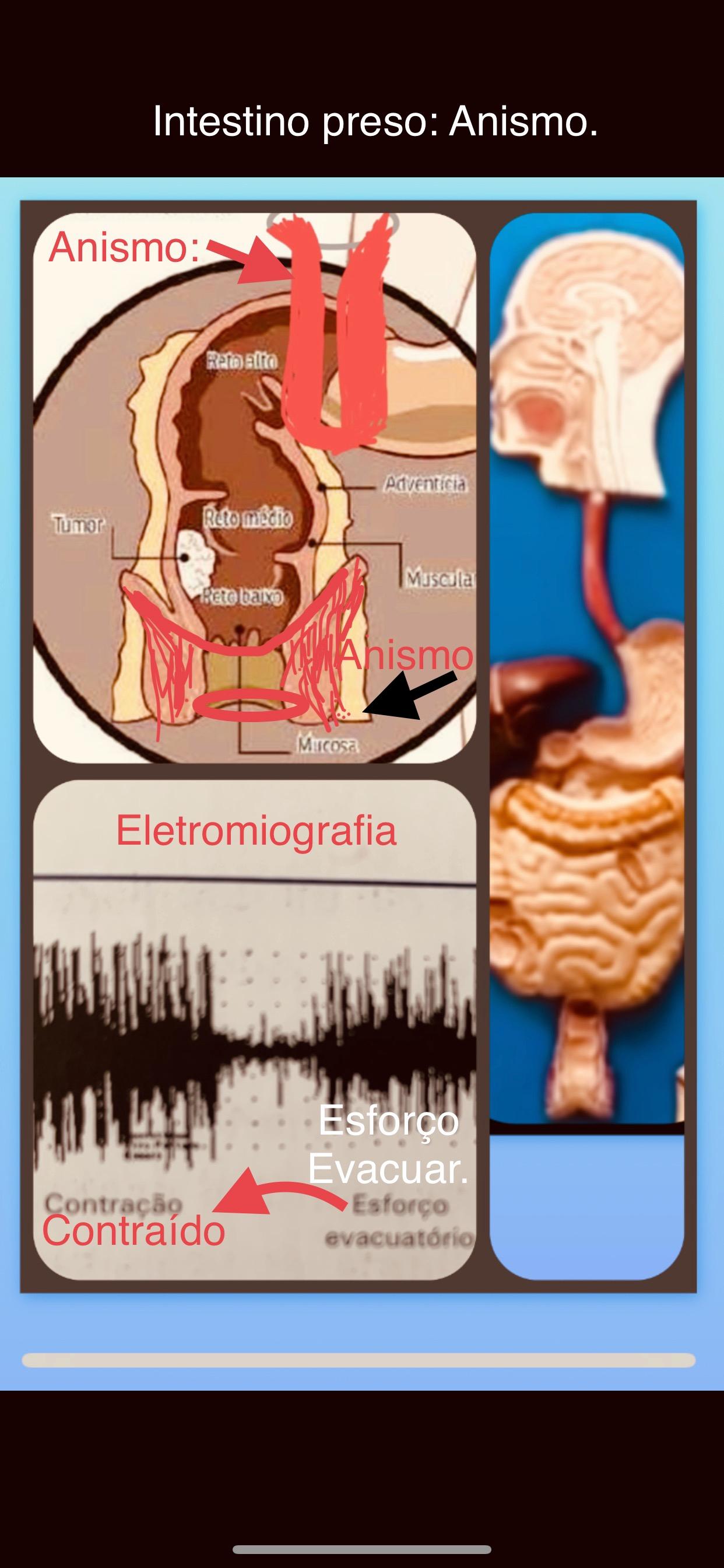 Obstipação intestinal e Anismo