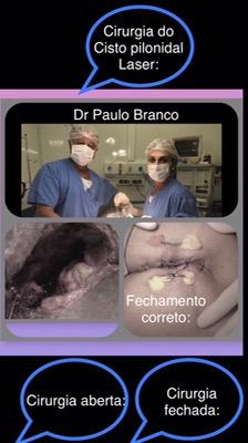 cisto pilonidal cirurgia aberta e fechada com laser