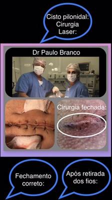 cisto pilonidal cirurgia fechada veja o resultado apos a retirada dos pontos.