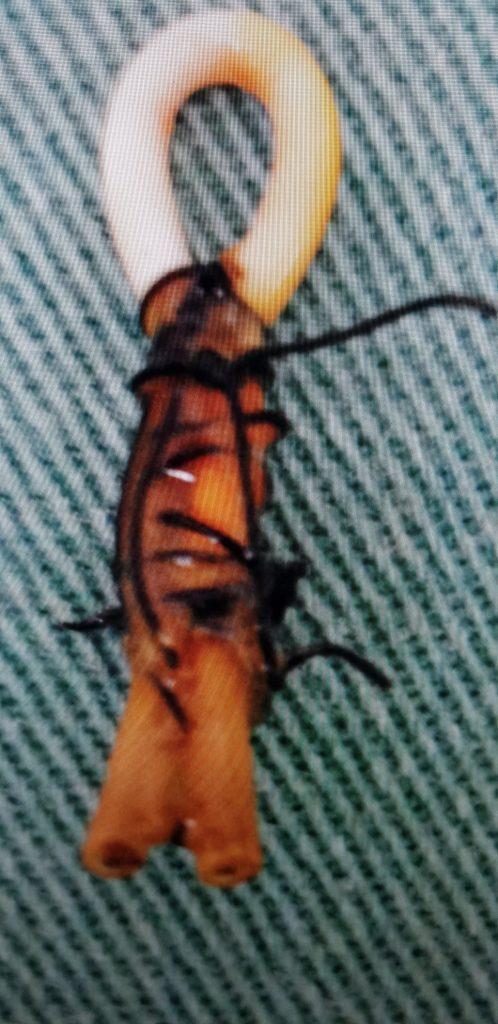 Seton retirado que não deu certo no tratamento da fistula perianal.